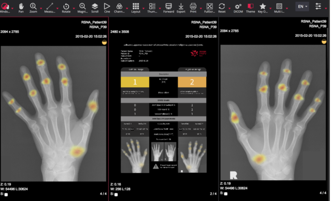 Applied machine learning and artificial intelligence in rheumatology
