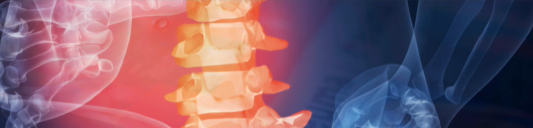 Online demonstration of a rheumatic symptom checker (Rheumatools)