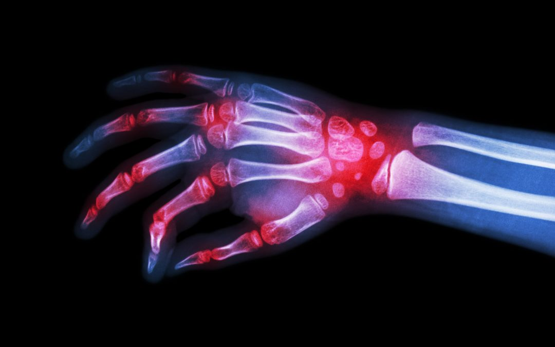 Artificial intelligence and machine learning in Rheumatology imaging: Are we ready?